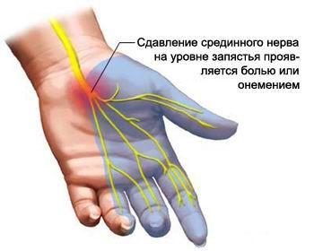 sredinnyj-nerv